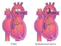 Артериальный проток